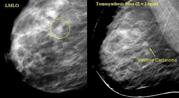 what is digital tomosynthesis About mammography and tomosynthesis [doc] description: mammograms and tomosynthesis are special x-ray exams of the breast x-ray or radiography, is the oldest and.
