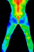 thermography heat map