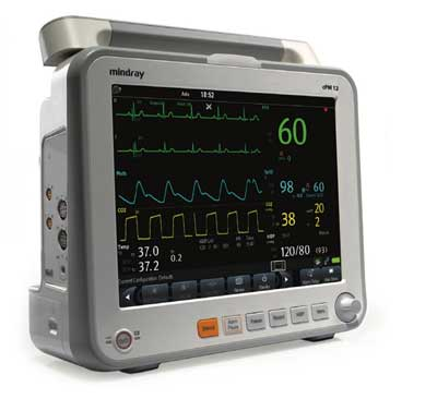 cardiac outout monitor