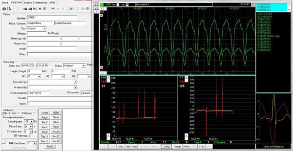 Screenshot 24hr ecg