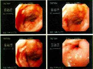 Endoscopic images of a duodenal ulcer
