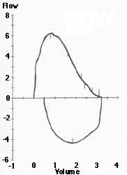 Normal Flow-Volume Curves