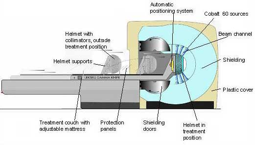 Cross section of a Gamma Knife