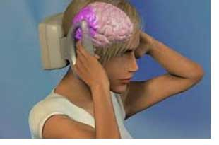 Trancranial stimulation for migrane
