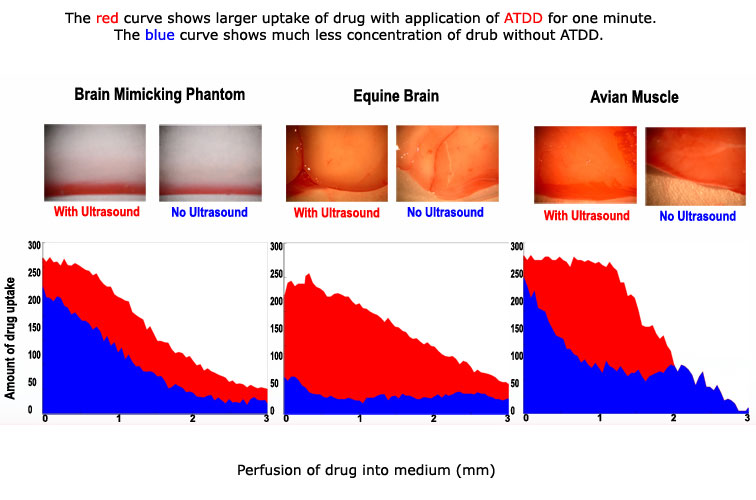 Acoustic targeted drug delivery (ATDD)