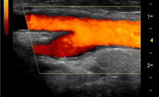 Vascular ultrasound of the arteries
