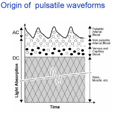pulsatile-waveforms